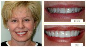 © Dentistry On Elgin, Cambridge