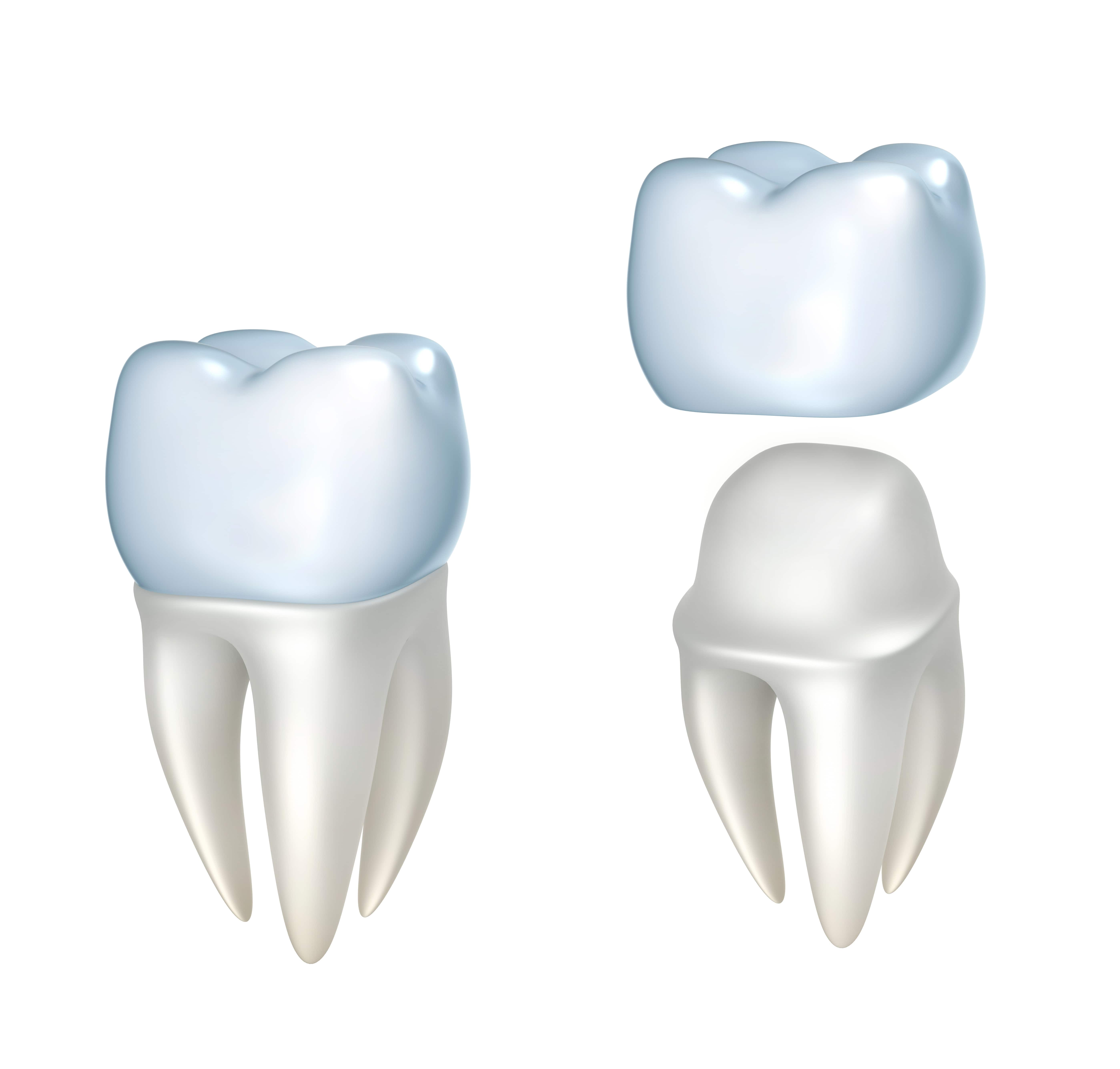 Cambridge dentist: Perfect smile with Dental Crowns