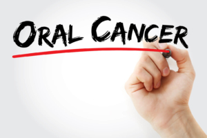 oral-cancer-causes